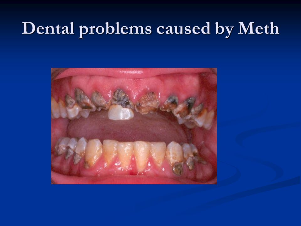Dental problems caused by Meth