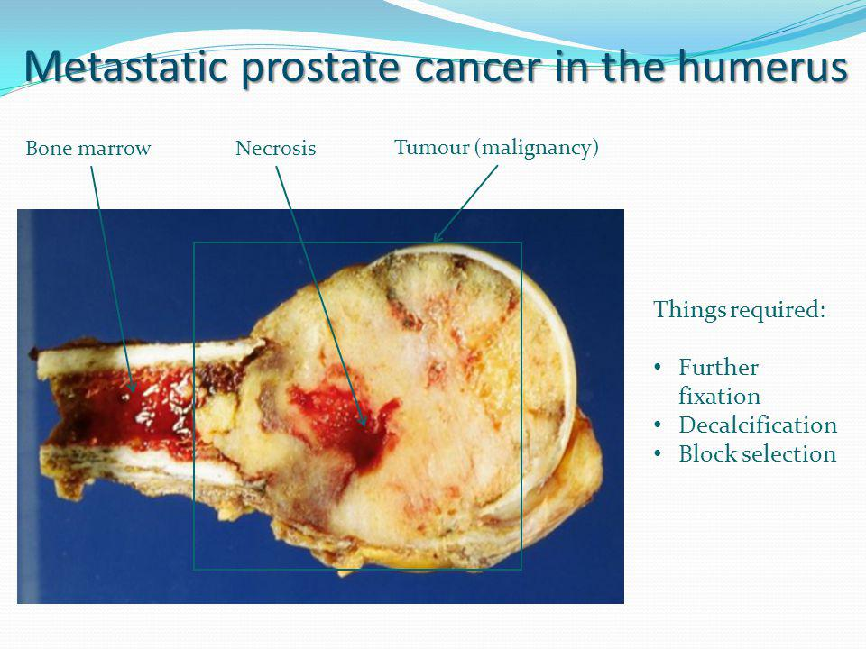 NecrosisBone marrow Tumour (malignancy) Metastatic prostate cancer in the humerus Things required: Further fixation Decalcification Block selection