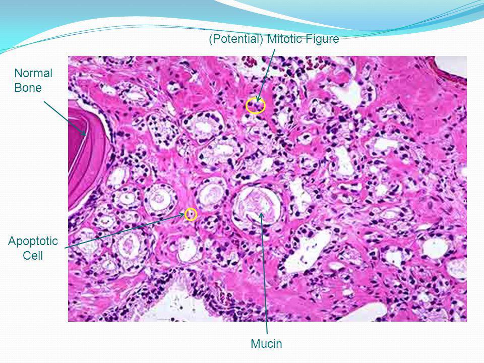 Normal Bone (Potential) Mitotic Figure Apoptotic Cell Mucin