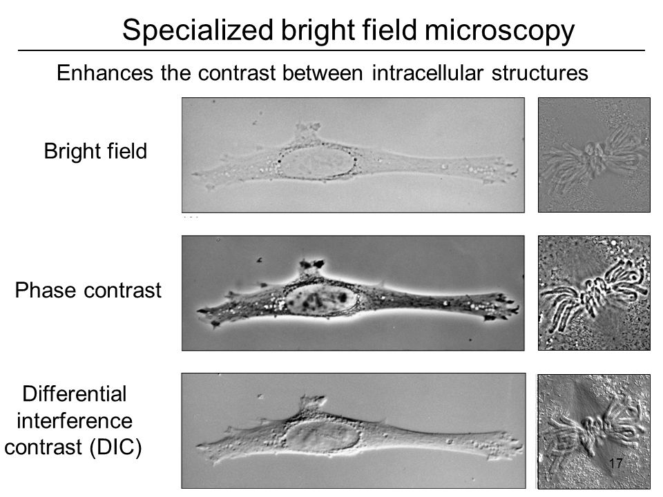 Specialized bright field microscopy Enhances the contrast between intracellular structures Differential interference contrast (DIC) Phase contrast Bright field 17