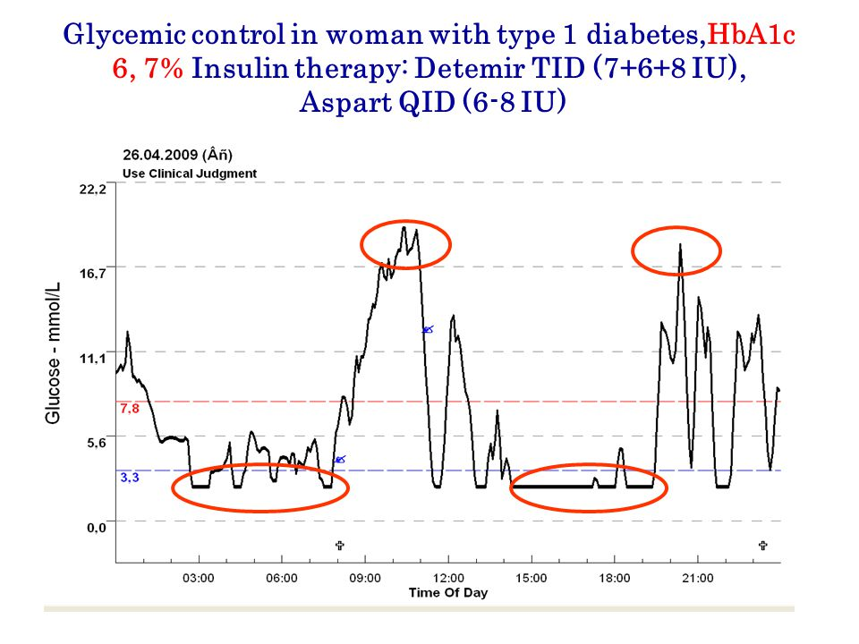 Glycemic control in woman with type 1 diabetes,НbA1c 6, 7% Insulin therapy: Detemir TID (7+6+8 IU), Aspart QID (6-8 IU)