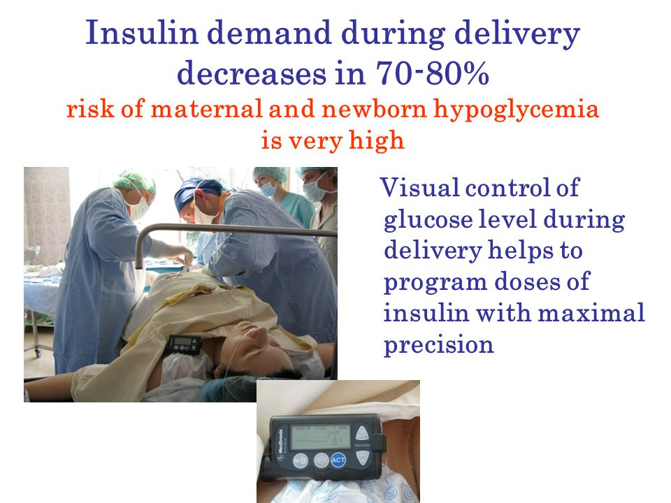 Insulin demand during delivery decreases in 70-80% risk of maternal and newborn hypoglycemia is very high Visual control of glucose level during delivery helps to program doses of insulin with maximal precision