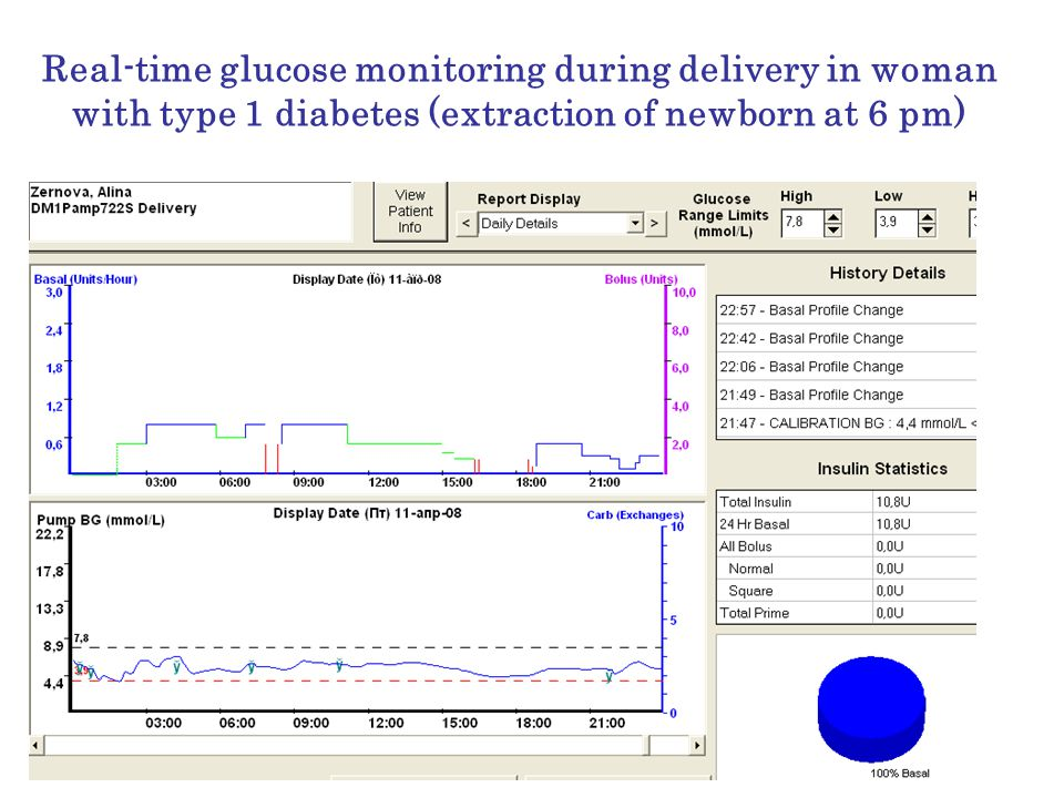Real-time glucose monitoring during delivery in woman with type 1 diabetes (extraction of newborn at 6 pm)