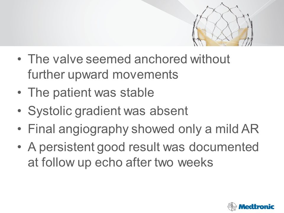 The valve seemed anchored without further upward movements The patient was stable Systolic gradient was absent Final angiography showed only a mild AR A persistent good result was documented at follow up echo after two weeks
