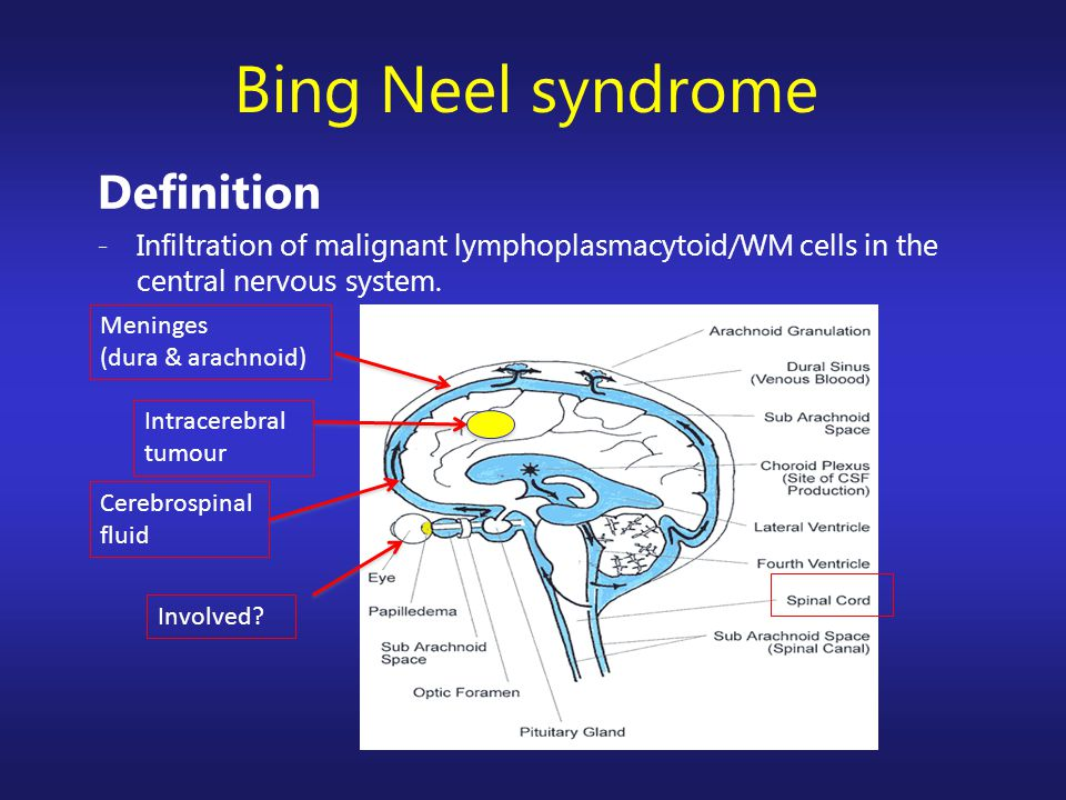 Definition -Infiltration of malignant lymphoplasmacytoid/WM cells in the central nervous system. Bing Neel syndrome Cerebrospinal fluid Involved? Intr