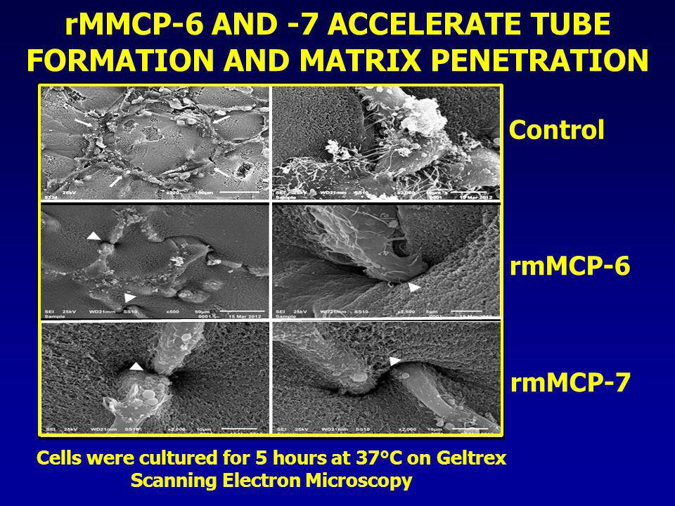 Control rmMCP-6 rmMCP-7 rMMCP-6 AND -7 ACCELERATE TUBE FORMATION AND MATRIX PENETRATION Cells were cultured for 5 hours at 37°C on Geltrex Scanning El