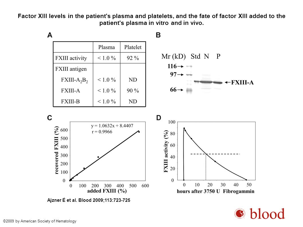 Factor XIII levels in the patient's plasma and platelets, and the fate of factor XIII added to the patient's plasma in vitro and in vivo. Ajzner É et