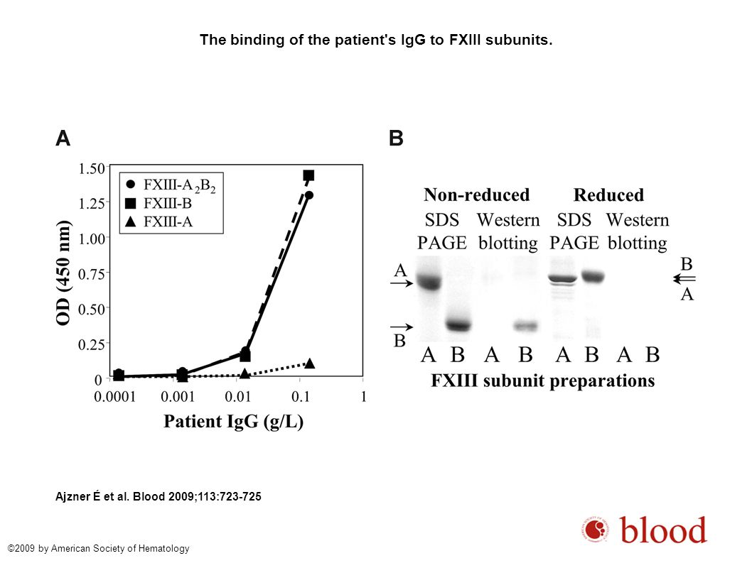 The binding of the patient's IgG to FXIII subunits. Ajzner É et al. Blood 2009;113:723-725 ©2009 by American Society of Hematology