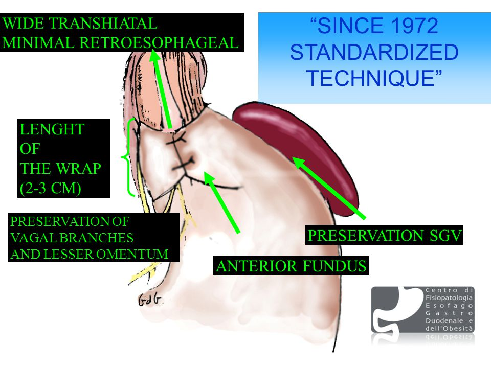 SINCE 1972 STANDARDIZED TECHNIQUE LENGHT OF THE WRAP (2-3 CM) ANTERIOR FUNDUS PRESERVATION OF VAGAL BRANCHES AND LESSER OMENTUM WIDE TRANSHIATAL MINIMAL RETROESOPHAGEAL PRESERVATION SGV