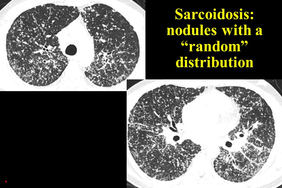 . Sarcoidosis: nodules with a random distribution