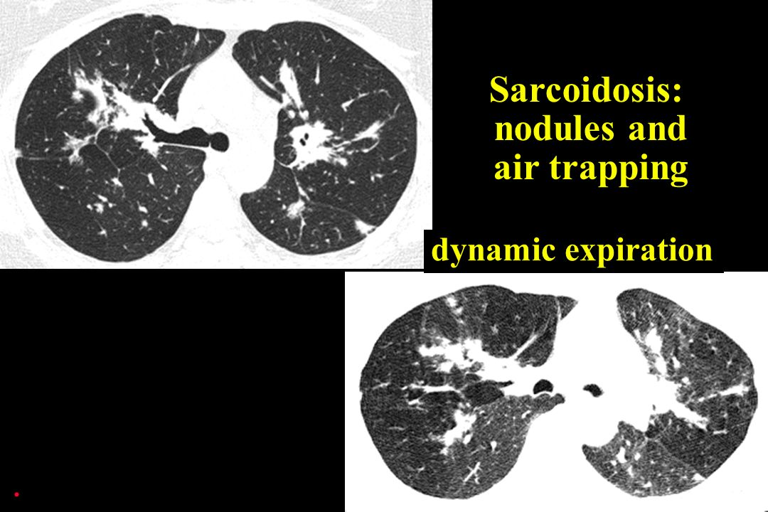 dynamic expiration Sarcoidosis: nodules and air trapping.