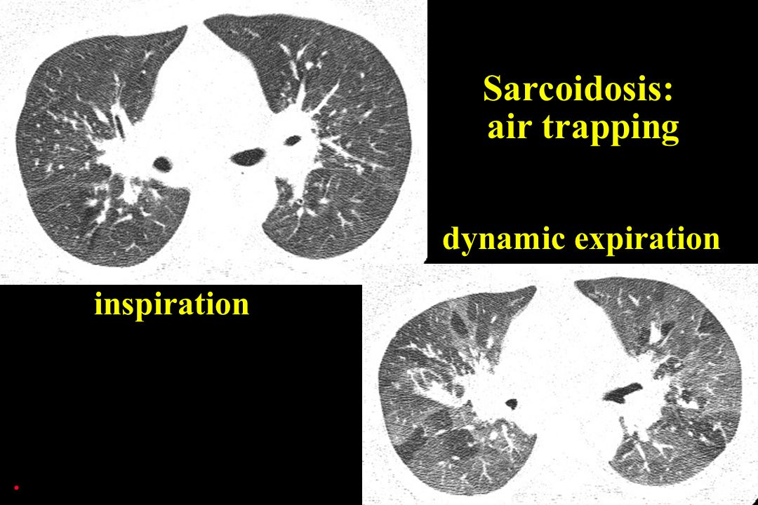 . dynamic expiration Sarcoidosis: air trapping inspiration