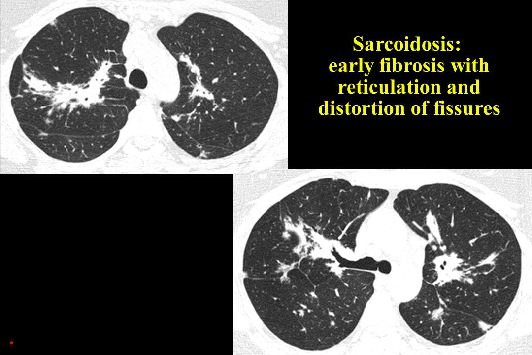 Sarcoidosis: early fibrosis with reticulation and distortion of fissures.