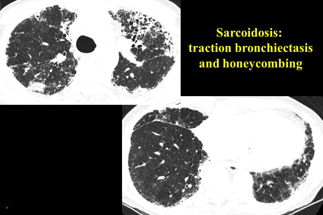 Sarcoidosis: traction bronchiectasis and honeycombing.