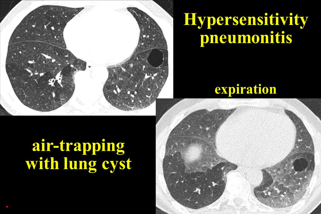 expiration Hypersensitivity pneumonitis air-trapping with lung cyst.