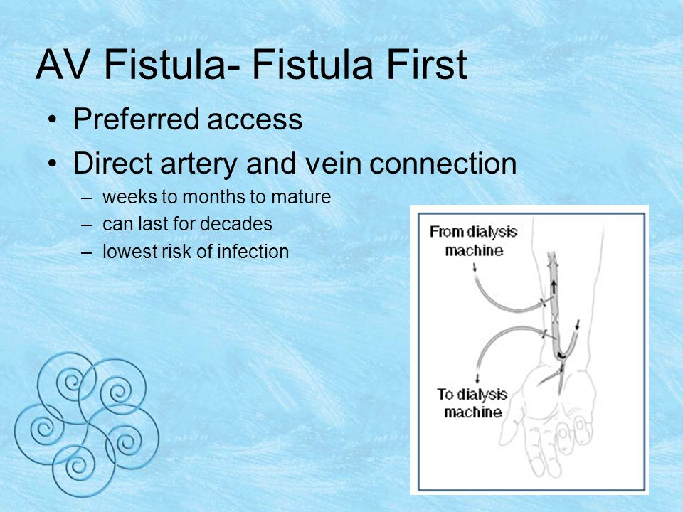 AV Fistula- Fistula First Preferred access Direct artery and vein connection –weeks to months to mature –can last for decades –lowest risk of infection