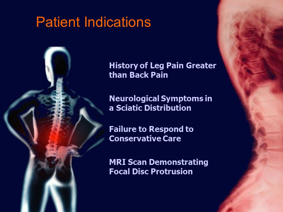 Patient Indications Failure to Respond to Conservative Care History of Leg Pain Greater than Back Pain Neurological Symptoms in a Sciatic Distribution MRI Scan Demonstrating Focal Disc Protrusion