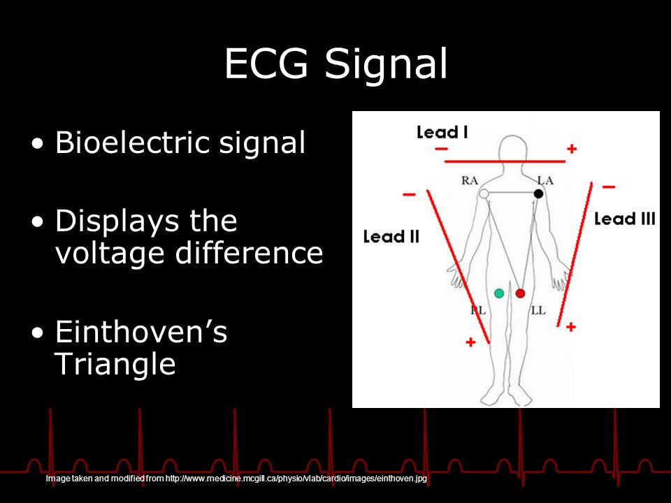 ECG Signal Bioelectric signal Displays the voltage difference Einthovens Triangle Image taken and modified from