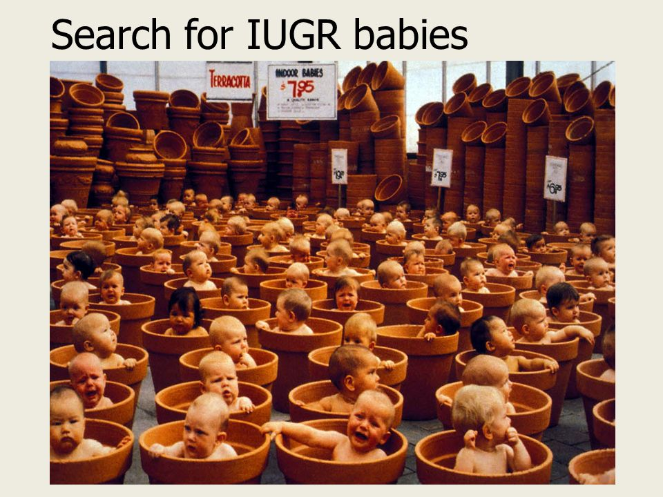 Search for IUGR babies