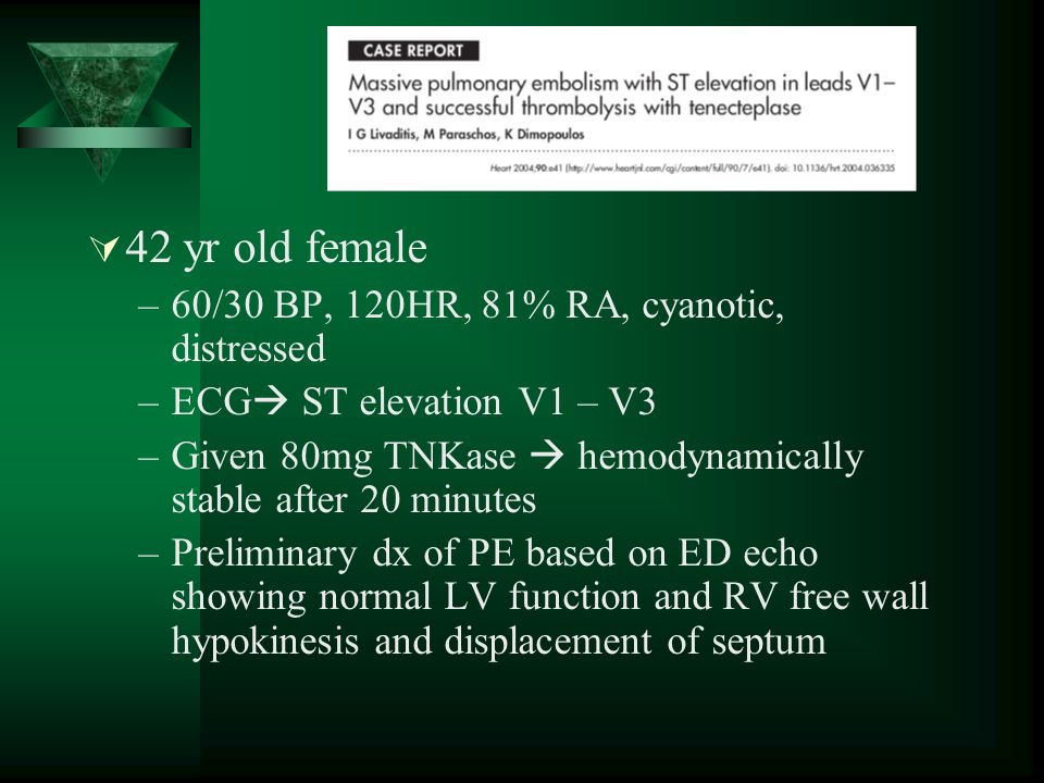 42 yr old female –60/30 BP, 120HR, 81% RA, cyanotic, distressed –ECG ST elevation V1 – V3 –Given 80mg TNKase hemodynamically stable after 20 minutes –Preliminary dx of PE based on ED echo showing normal LV function and RV free wall hypokinesis and displacement of septum