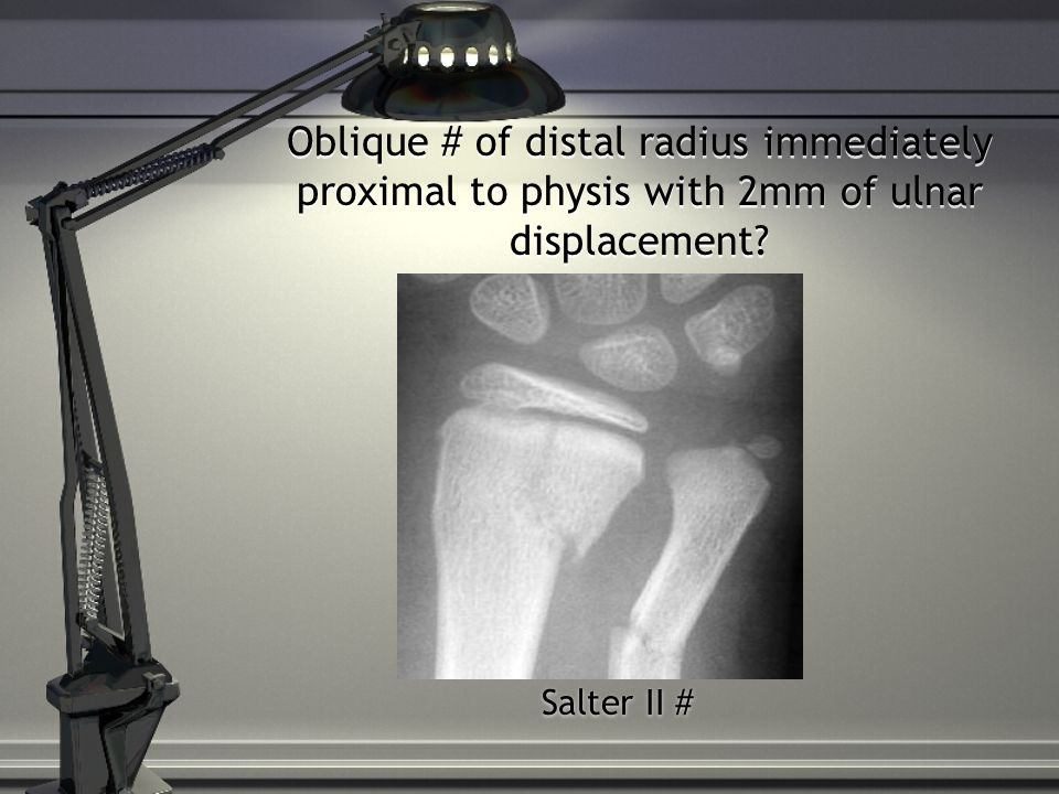 Oblique # of distal radius immediately proximal to physis with 2mm of ulnar displacement.