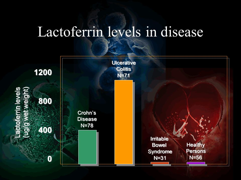 Lactoferrin levels in disease 12008004000 Lactoferrin levels (ug/g wet weight) CrohnsDiseaseN=78 UlcerativeColitisN=71 IrritableBowelSyndromeN=31 HealthyPersonsN=56
