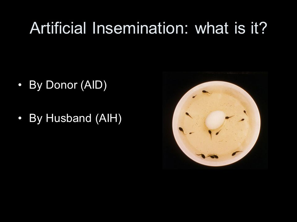 Artificial Insemination: what is it By Donor (AID) By Husband (AIH)