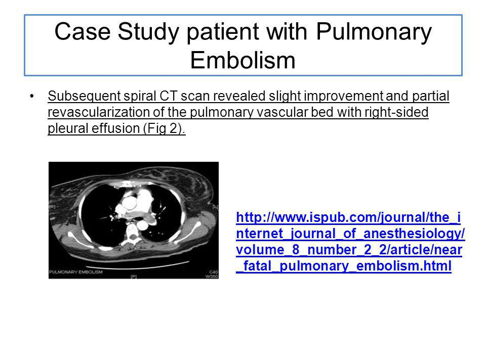 Case Study patient with Pulmonary Embolism Subsequent spiral CT scan revealed slight improvement and partial revascularization of the pulmonary vascular bed with right-sided pleural effusion (Fig 2).