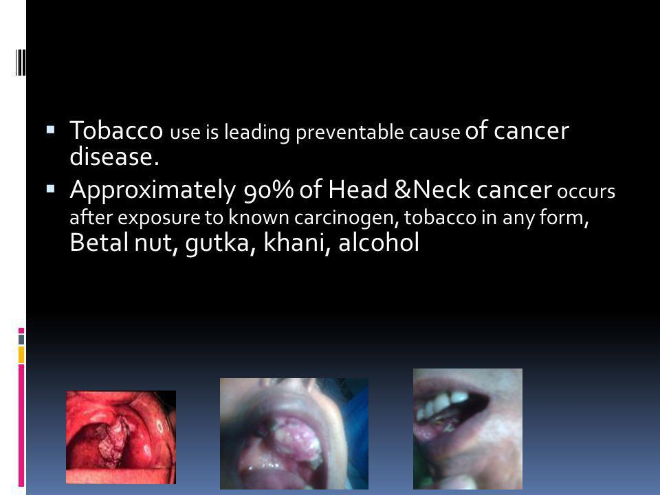 Tobacco use is leading preventable cause of cancer disease.