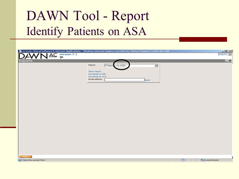 DAWN Tool - Report Identify Patients on ASA