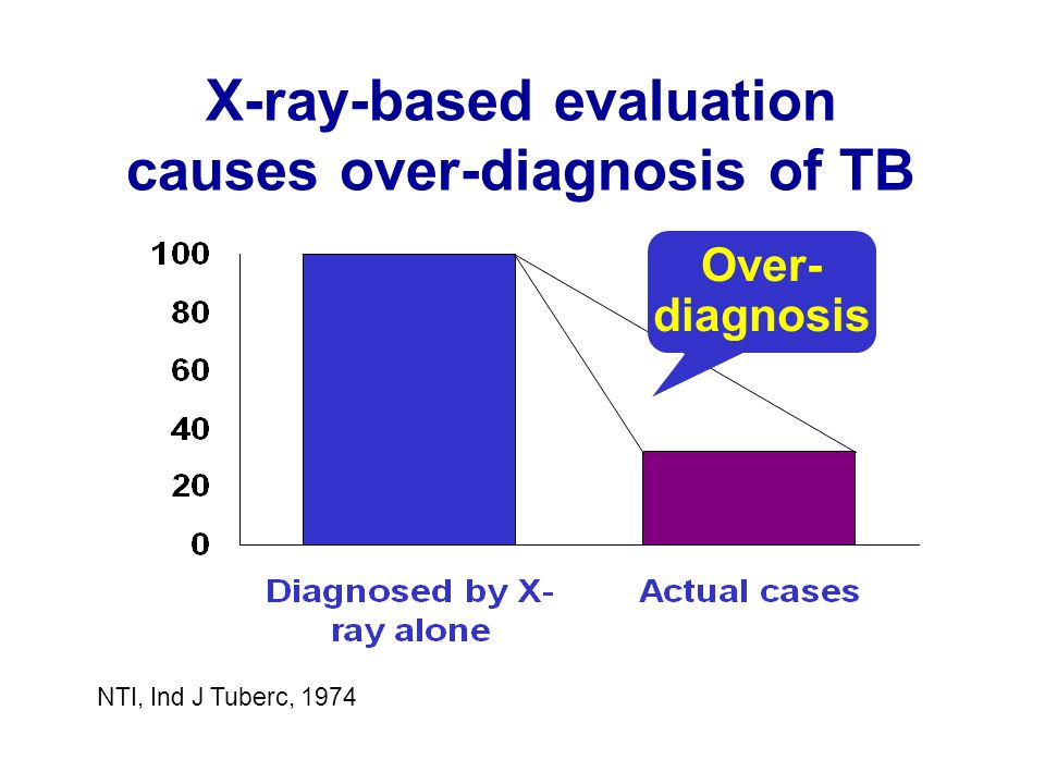 X-ray-based evaluation causes over-diagnosis of TB NTI, Ind J Tuberc, 1974 Over- diagnosis