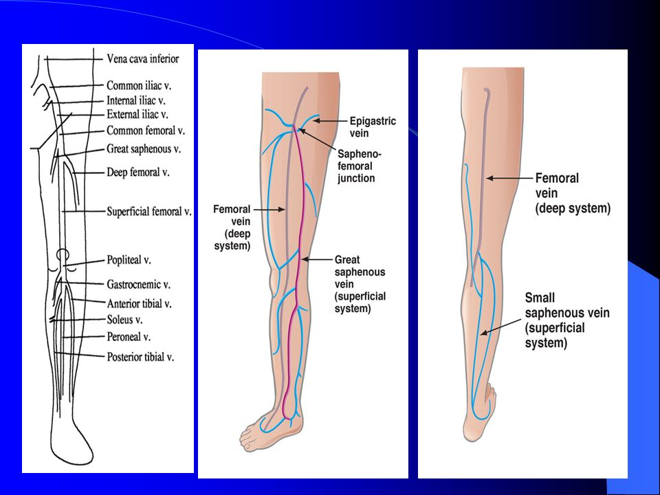 MANAGEMENT OF VARICOSE VEINS WHEN & HOW - ppt video online download