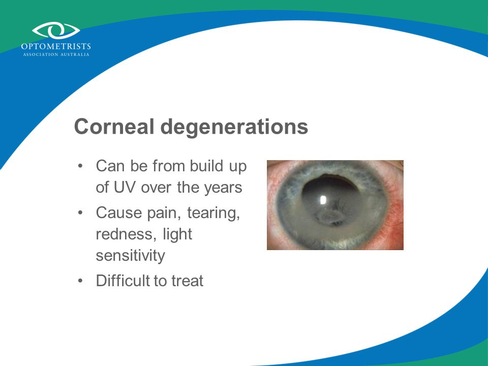Corneal degenerations Can be from build up of UV over the years Cause pain, tearing, redness, light sensitivity Difficult to treat
