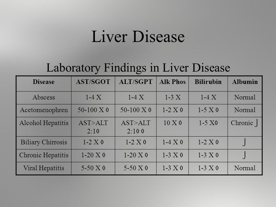 Liver Disease Laboratory Findings in Liver Disease DiseaseAST/SGOTALT/SGPTAlk PhosBilirubinAlbumin Abscess1-4 X 1-3 X1-4 XNormal Acetomenophren X 1-2 X 1-5 X Normal Alcohol HepatitisAST>ALT 2:1 10 X 1-5 X Chronic Biliary Chirrosis 1-2 X 1-4 X 1-2 X Chronic Hepatitis 1-20 X 1-3 X Viral Hepatitis 5-50 X 1-3 X Normal