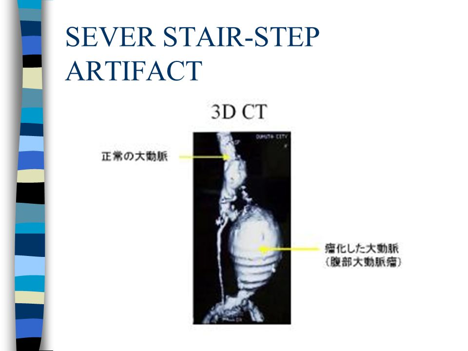 SEVER STAIR-STEP ARTIFACT