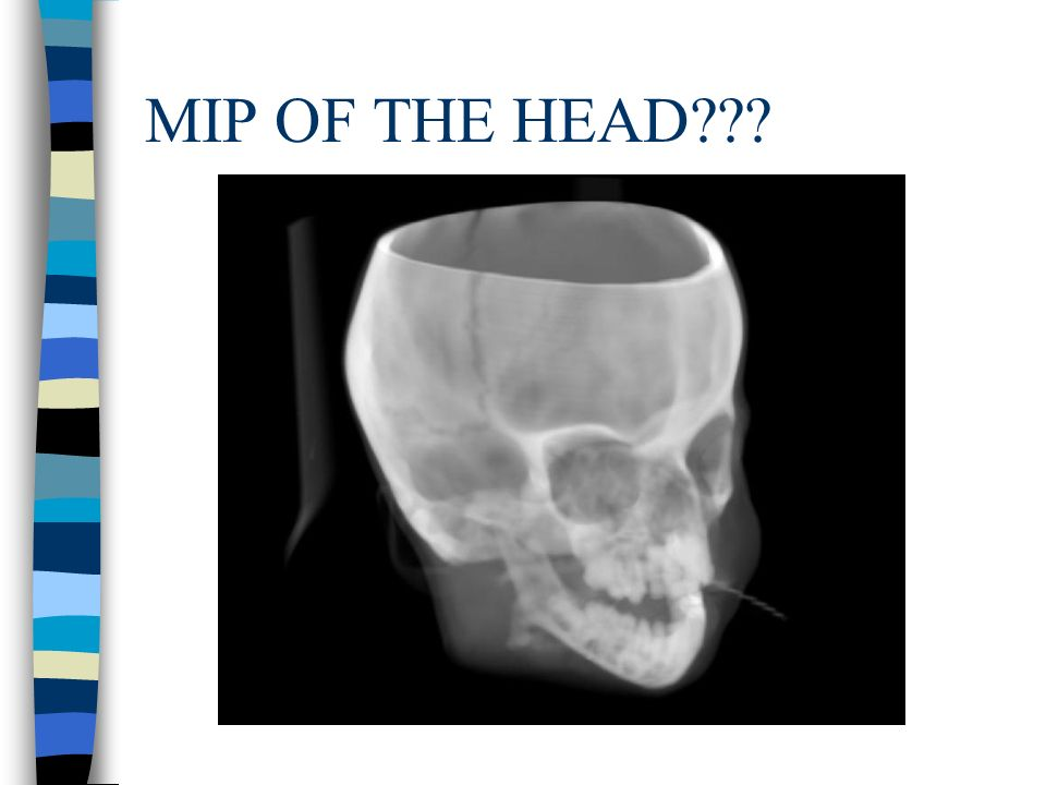 MIP OF THE HEAD