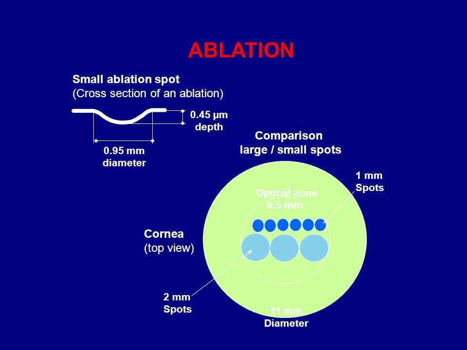 Small ablation spot (Cross section of an ablation) 0.95 mm diameter 0.45 µm depth Cornea (top view) 2 mm Spots 1 mm Spots Optical zone 6.5 mm Comparison large / small spots 11 mm Diameter ABLATION
