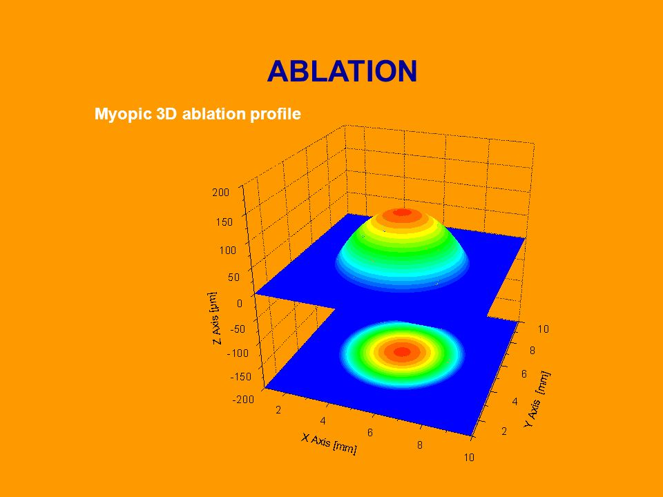 Myopic 3D ablation profile ABLATION