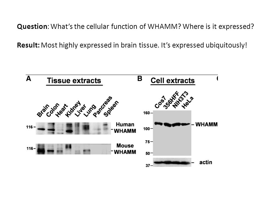 Question: Whats the cellular function of WHAMM. Where is it expressed.