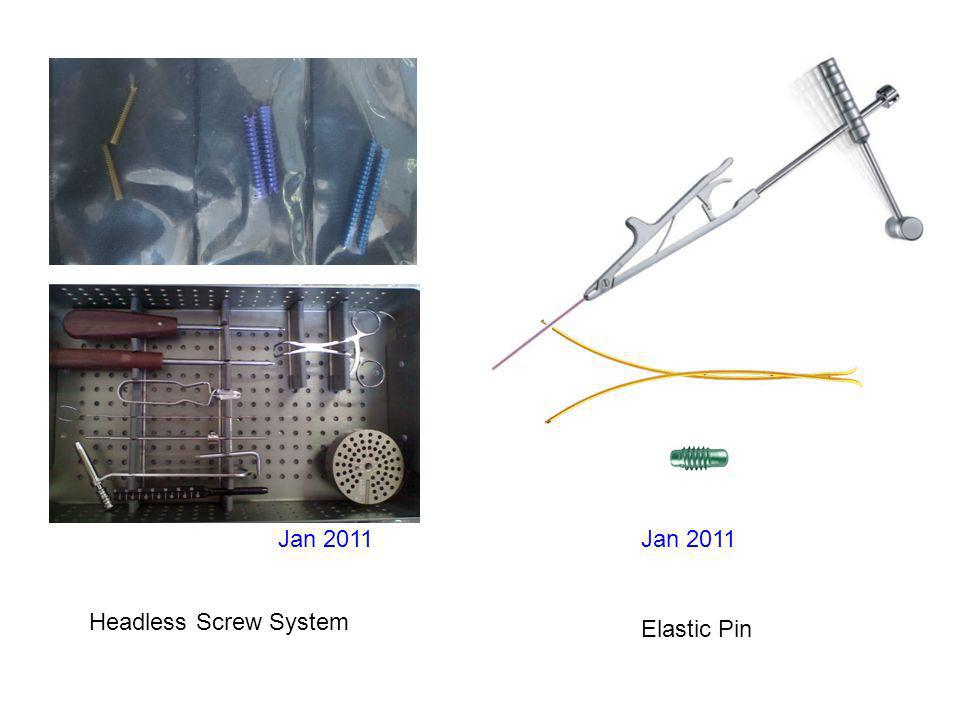 Jan 2011 Headless Screw System Elastic Pin Jan 2011
