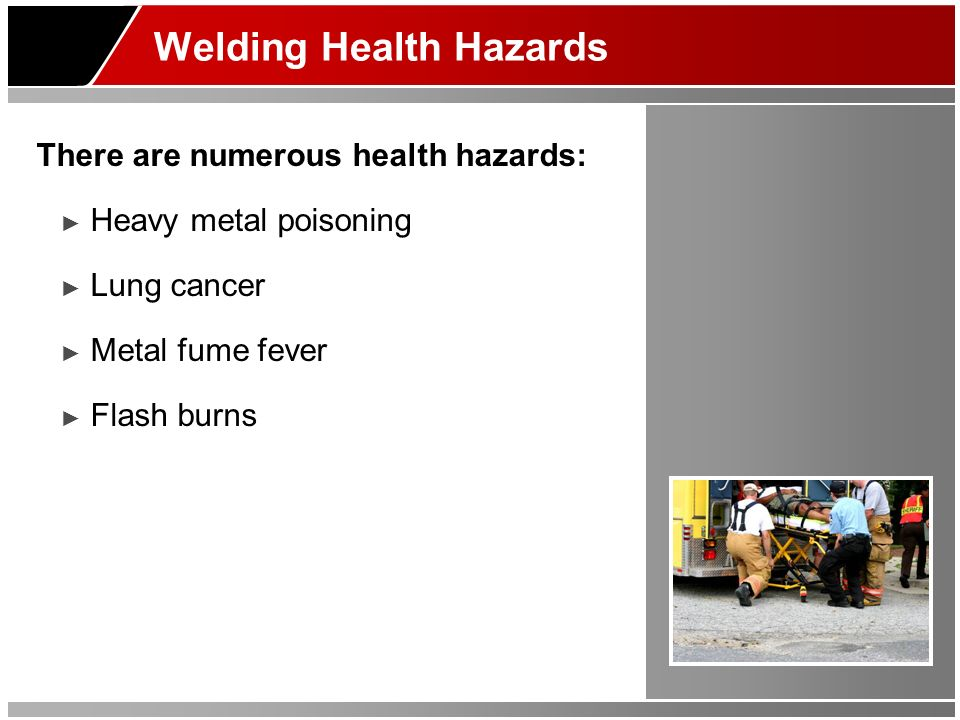 Welding Health Hazards There are numerous health hazards: Heavy metal poisoning Lung cancer Metal fume fever Flash burns