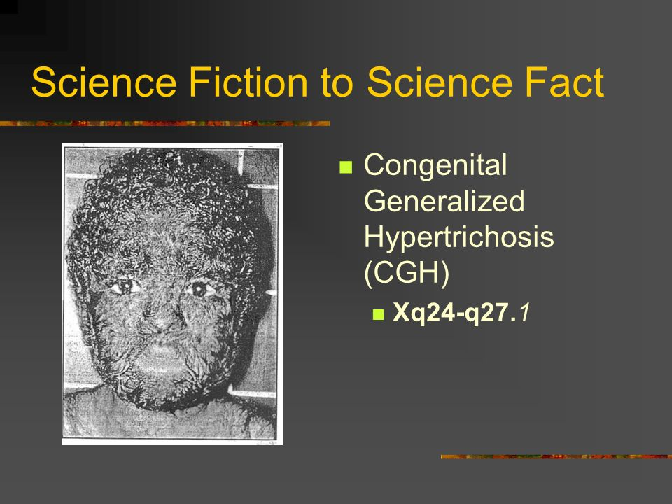 Science Fiction to Science Fact Congenital Generalized Hypertrichosis (CGH) Xq24-q27.1