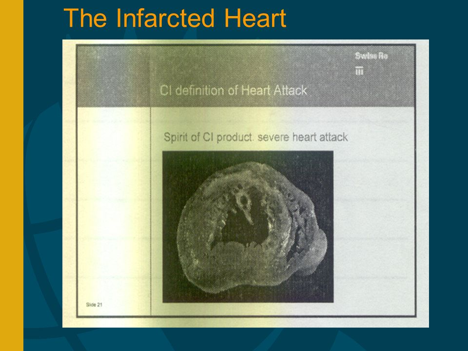The Infarcted Heart