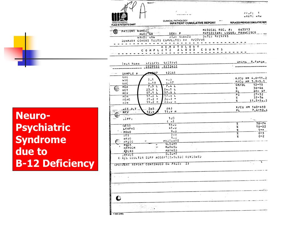 Neuro- Psychiatric Syndrome due to B-12 Deficiency