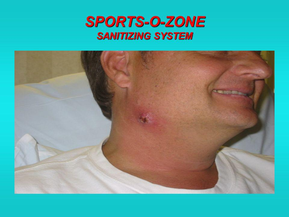 SPORTS-O-ZONE SANITIZING SYSTEM