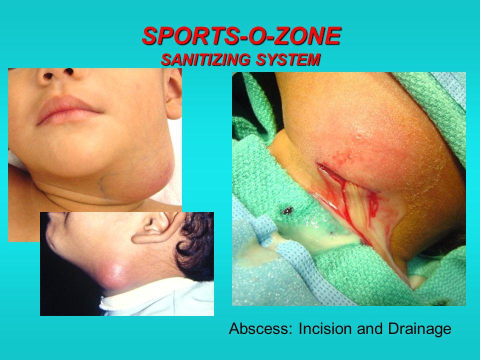 SPORTS-O-ZONE SANITIZING SYSTEM Abscess: Incision and Drainage