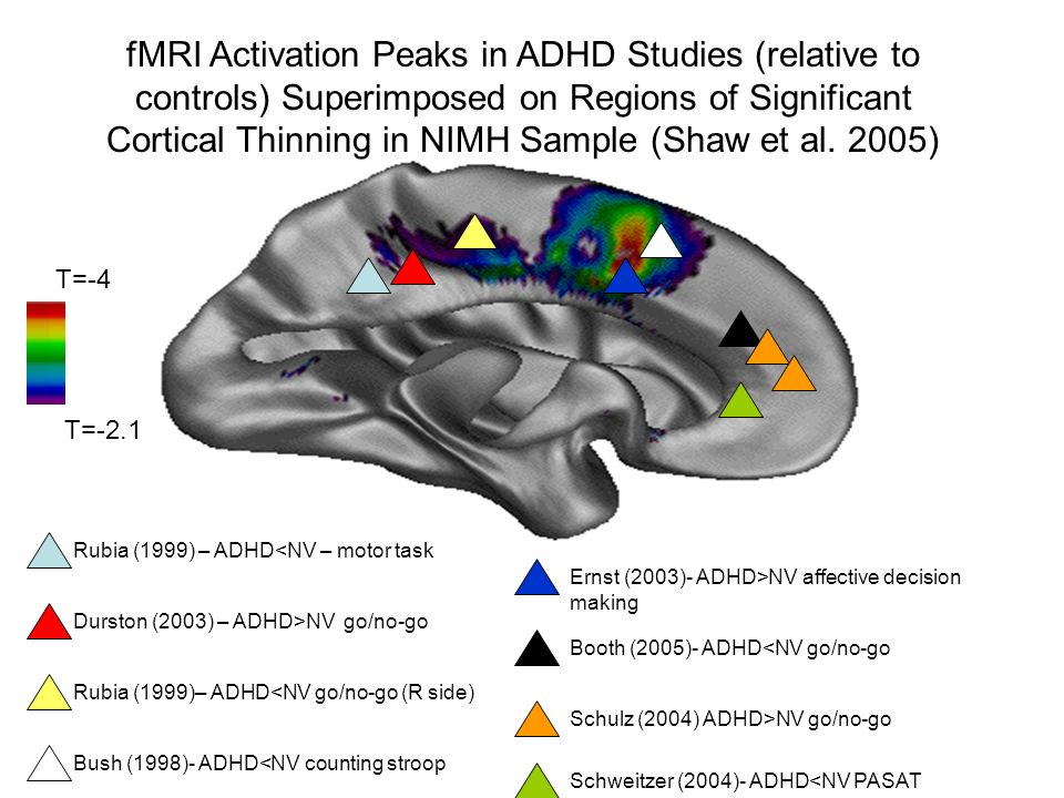 T=-4 T=-2.1 fMRI Activation Peaks in ADHD Studies (relative to controls) Superimposed on Regions of Significant Cortical Thinning in NIMH Sample (Shaw et al.