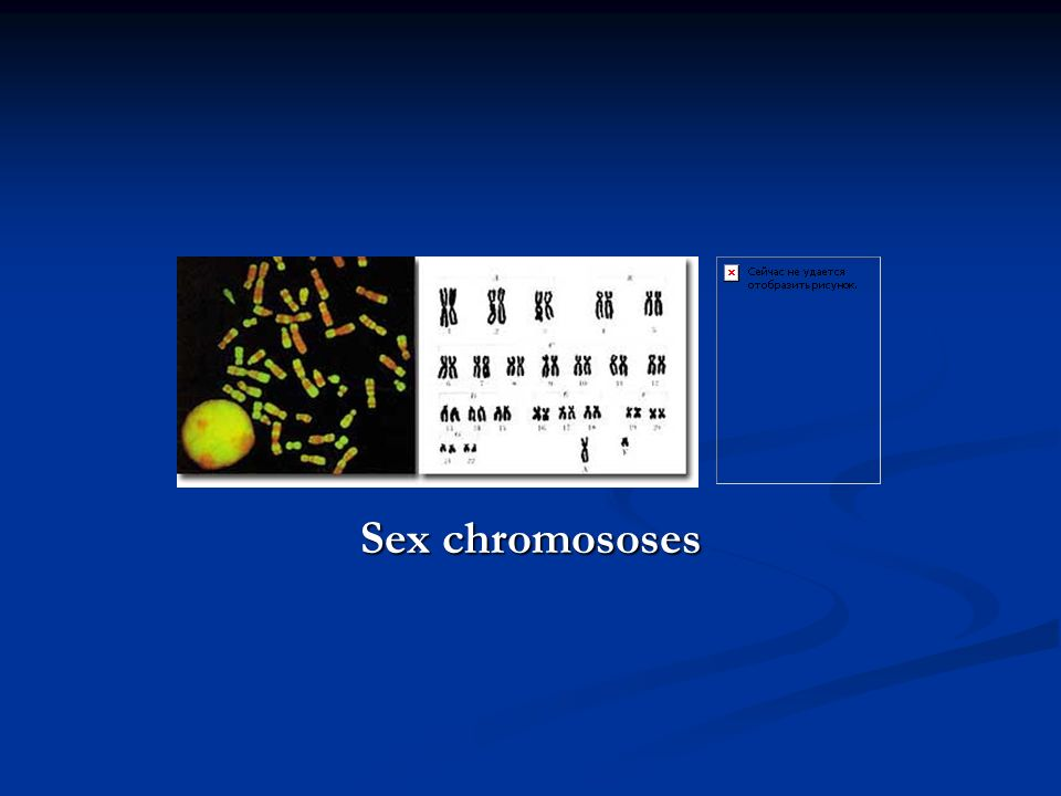 Sex chromososes