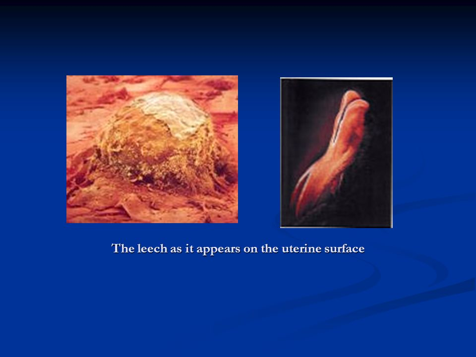 The leech as it appears on the uterine surface