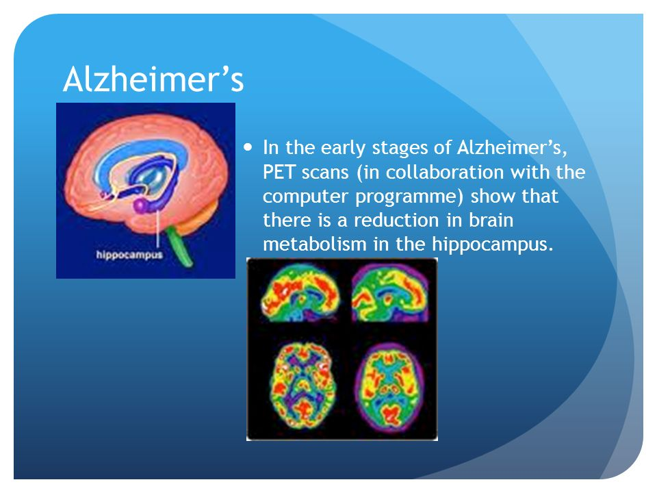 Alzheimers In the early stages of Alzheimers, PET scans (in collaboration with the computer programme) show that there is a reduction in brain metabolism in the hippocampus.